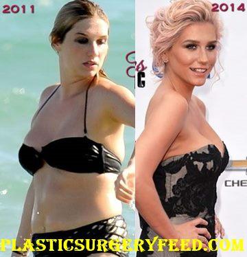 Kesha Liposuction