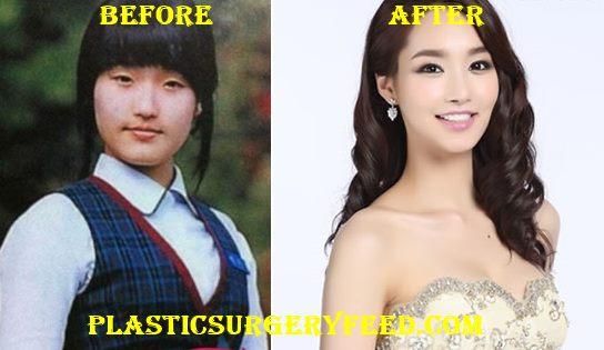Miss Korea Plastic Surgery