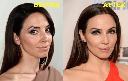 Whitney Cummings Botox Before After