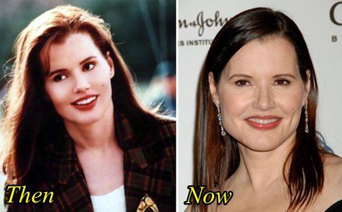 Geena Davis Lip Enhancement