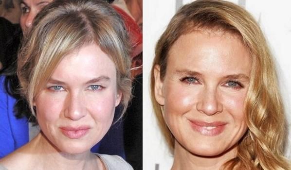 Renee Zellweger Botox