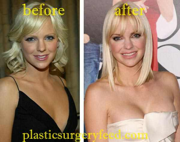 Anna Faris Breast Implant