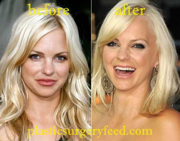 Anna Faris Facial Reconstruction