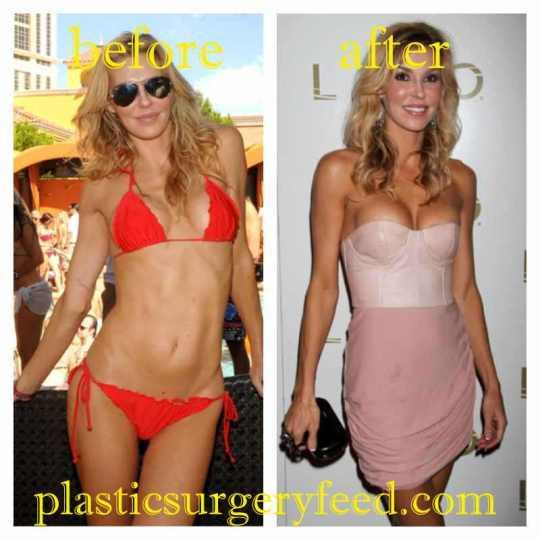 Brandi Glanville Breast Implant