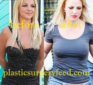 Britney Spears Breast Implants