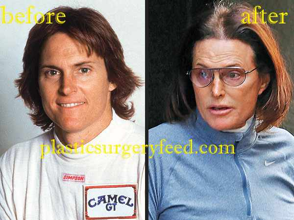 Bruce Jenner Botox