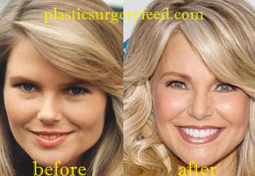 Christie Brinkley Blepharoplasty Eyelid