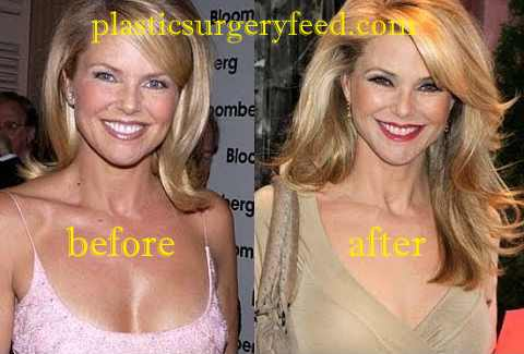 Christie Brinkley Botox anfd Facelift