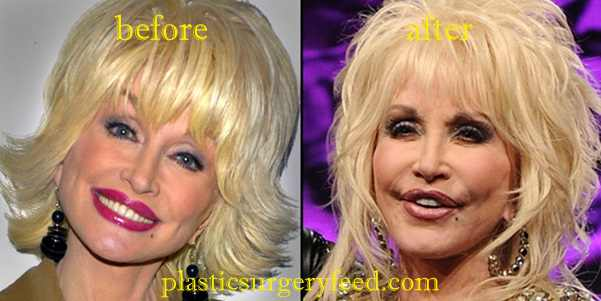 Dolly Parton Facial Surgery