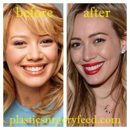 Hilary Duff Lip Surgery