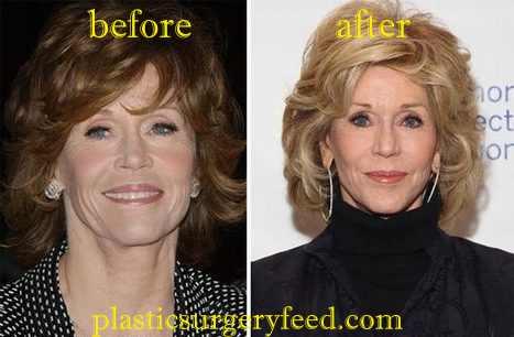 Jane Fonda Facelift