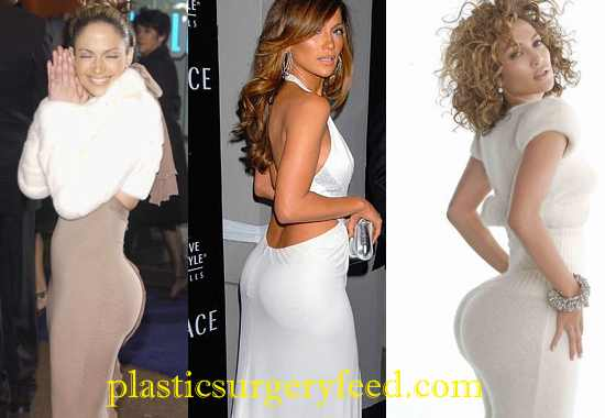 Jennifer Lopez Buttock Implants