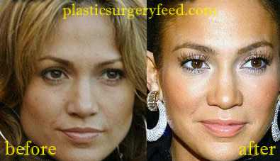 Jennifer Lopez Lips Implant and Botox