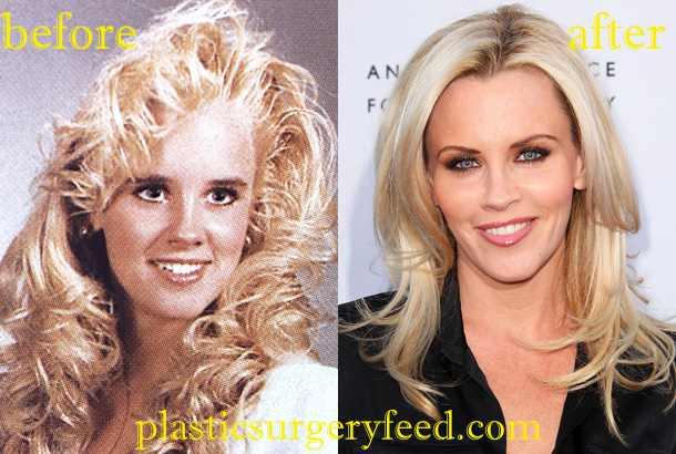 Jenny McCarthy Botox