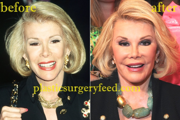 Joan River facelift and neck lift