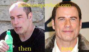 John Travolta Hair Implant