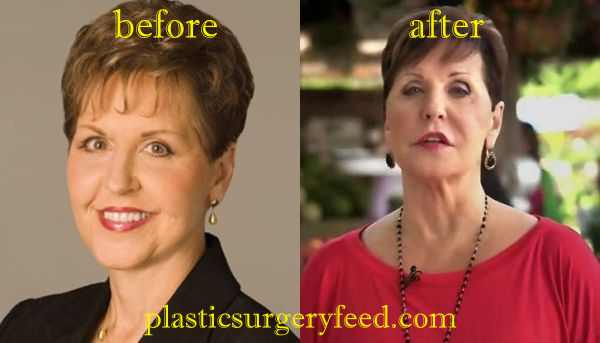 Joyce Meyer Lip Injection