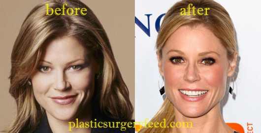 Julie Bowen Botox