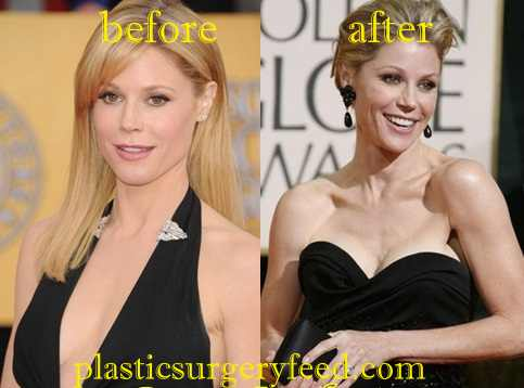 Julie Bowen breast Augmentation