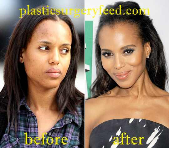 Kerry Washington Botox