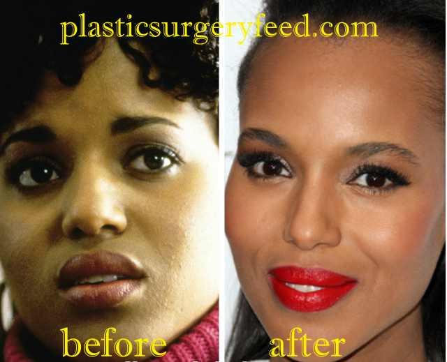 Kerry Washington Cheek Implant
