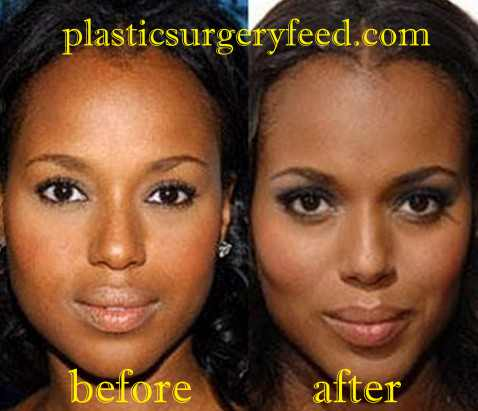 Kerry Washington Lip Implant