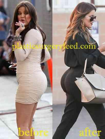 Khloe Kardashian Buttock