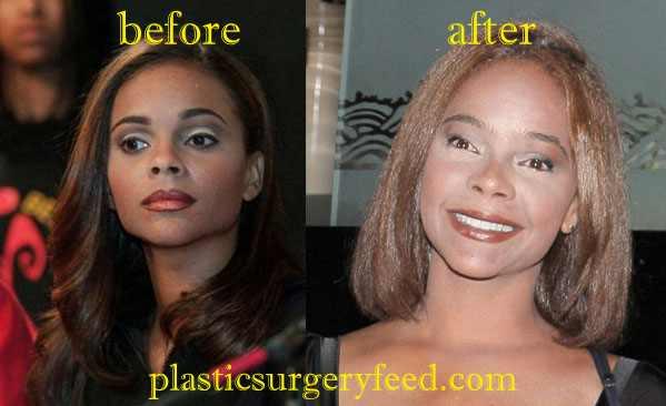 Lark Voorhies Eyelid Surgery