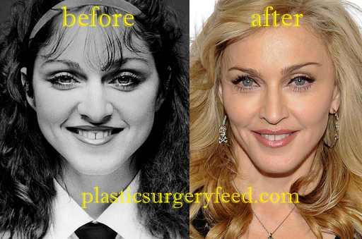 Madonna Jaw Enhancement