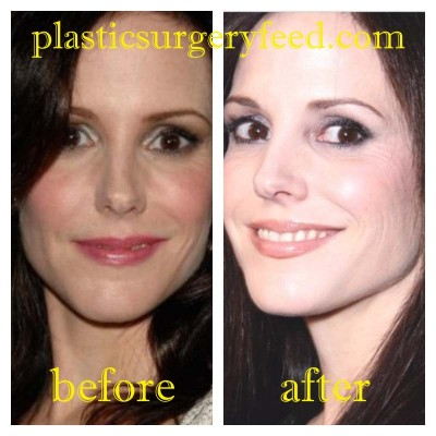 Mary Louise Parker Botox and Facelift