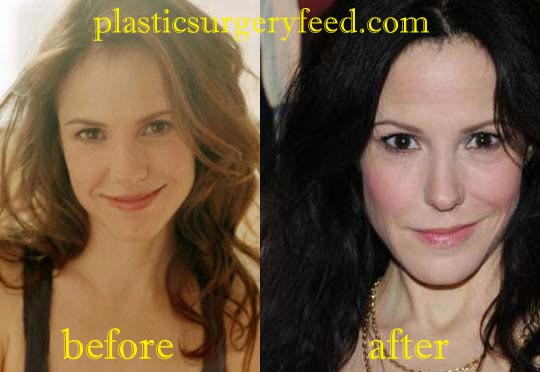 Mary Louise Parker Nose Job