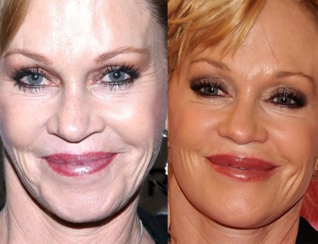Melanie Griffith Lip Augmentation