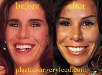 Melissa Rivers Nose Job