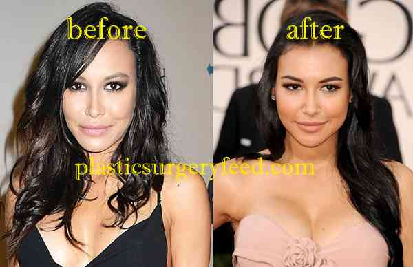 Naya Rivera Breast Implants