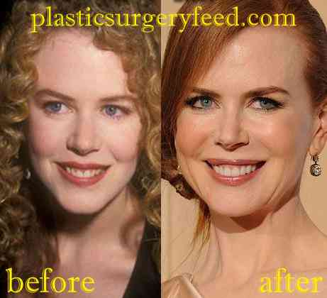Nicole Kidman Facelift and Botox