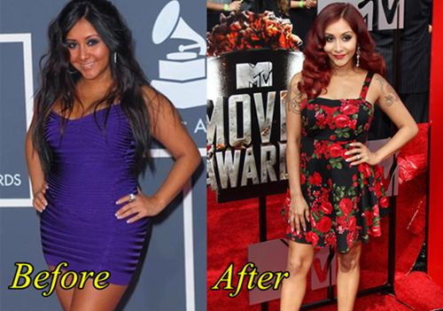 Nicole Polizzi Snooki Liposuction