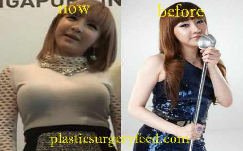Park Bom Breast Implant
