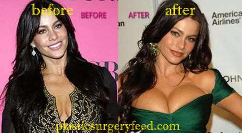 Sofia Vergara Breast Implants