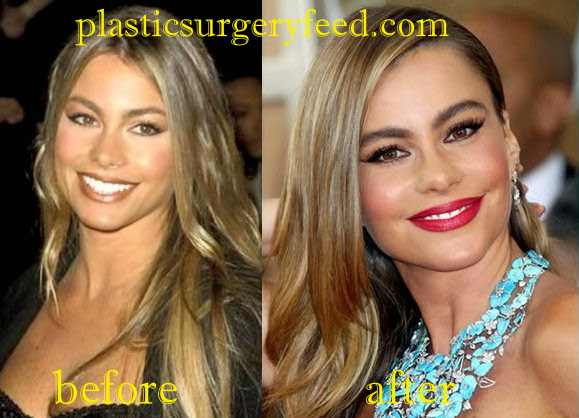 Sofia Vergara Facelift
