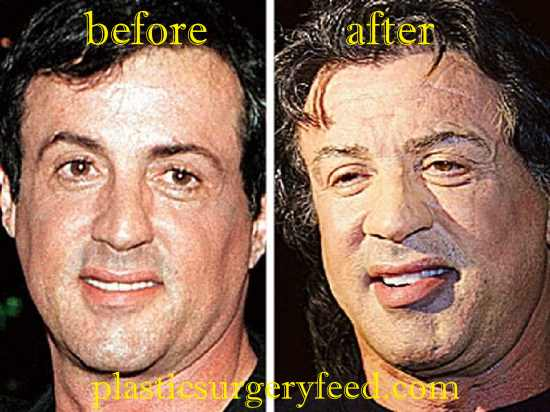 Sylvester Stallone Facelift