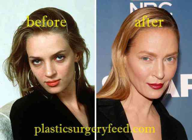 Uma Thurman Cheek Implants