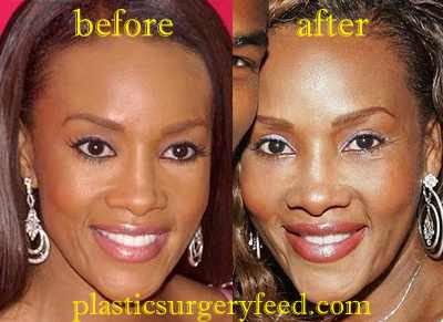 Vivica Fox Lips Enhancement