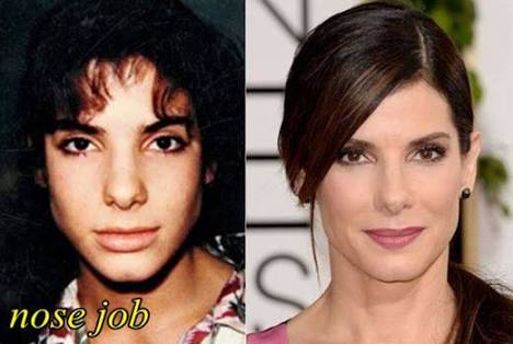 Sandra bullock nose job rhinoplasty