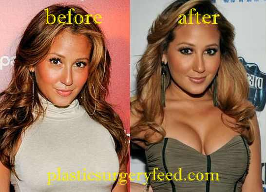 Adrienne Bailon Breast Implant