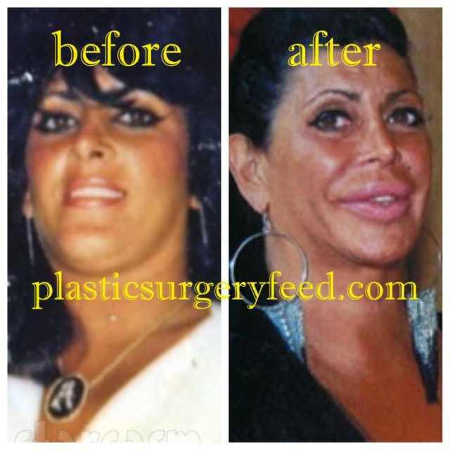Big Ang Lip Implant