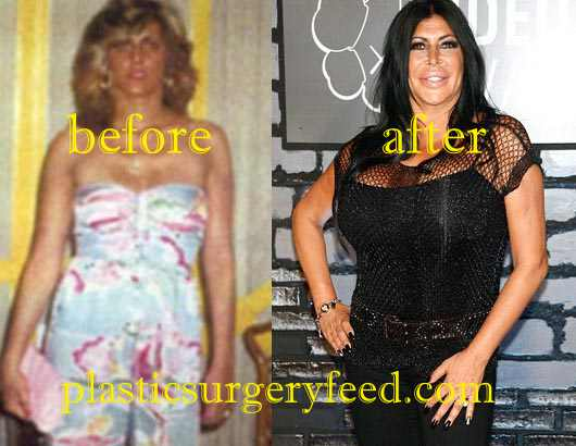 Big Ang Liposuction