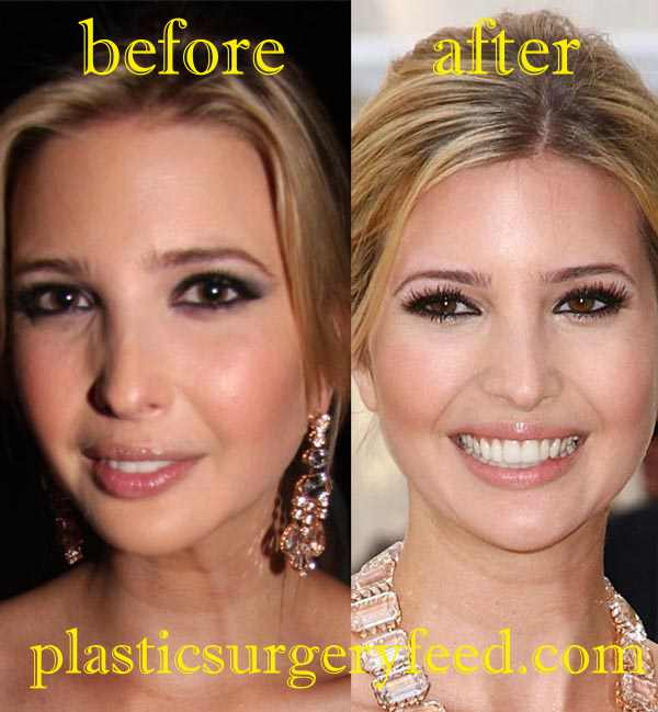 Ivanka Trump Botox