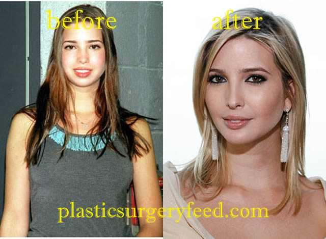 Ivanka Trump Lip ENhancement