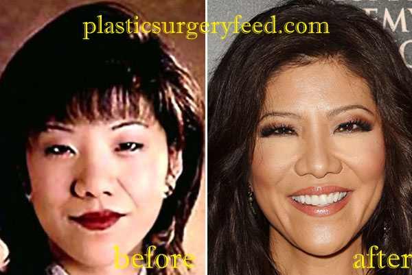 Julie Chen Nose JOb