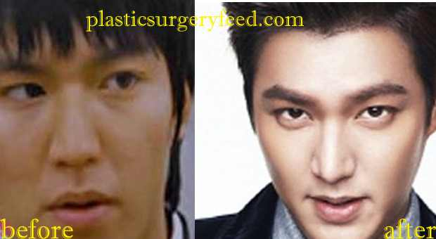 Lee Min Ho Lip Enhancement